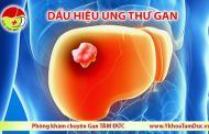 Cảnh giác các dấu hiệu ung thư gan