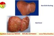 Thuốc điều trị bệnh gan và những điều cần lưu ý