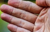 Nhìn tay đoán bệnh: Kiểm tra sức khỏe ngay nếu tay bạn có những dấu hiệu sau