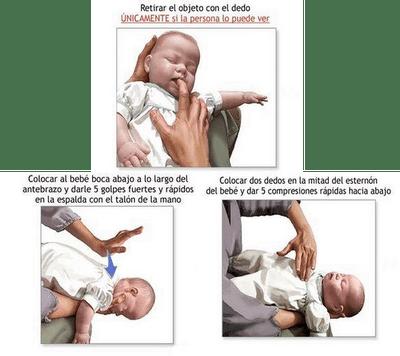Maniobra de Heimlich en niños
