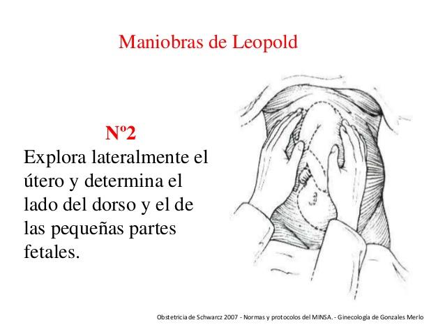 2da maniobra de Leopold