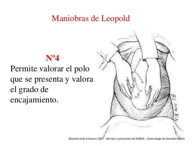 4ta maniobra de Leopold