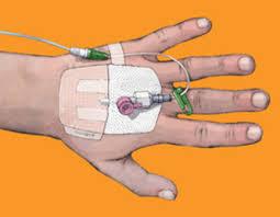 fijación de la venoclisis 1