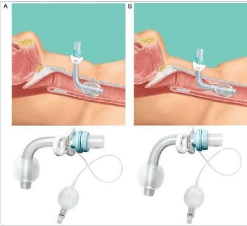 traqueostomia Procedimientos