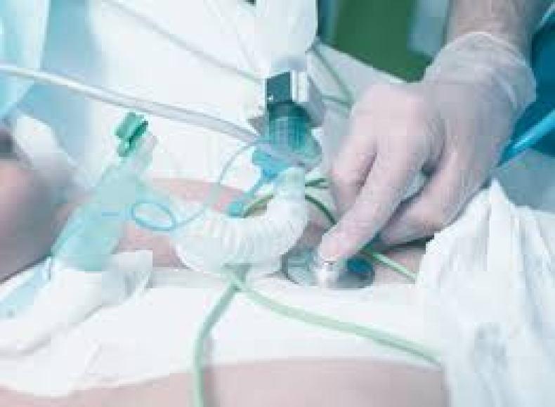 Monitorización continua de la traqueostomia