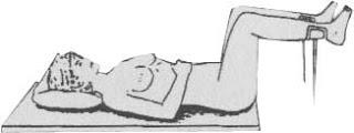 Ginecológica o litotomía