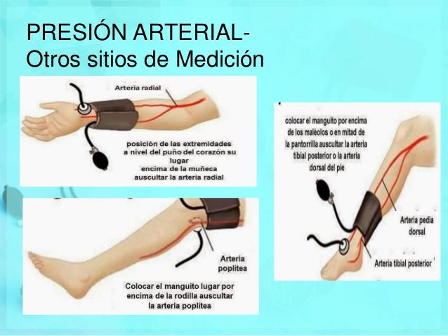 l brazalete ajustado produce zonas de isquemia.