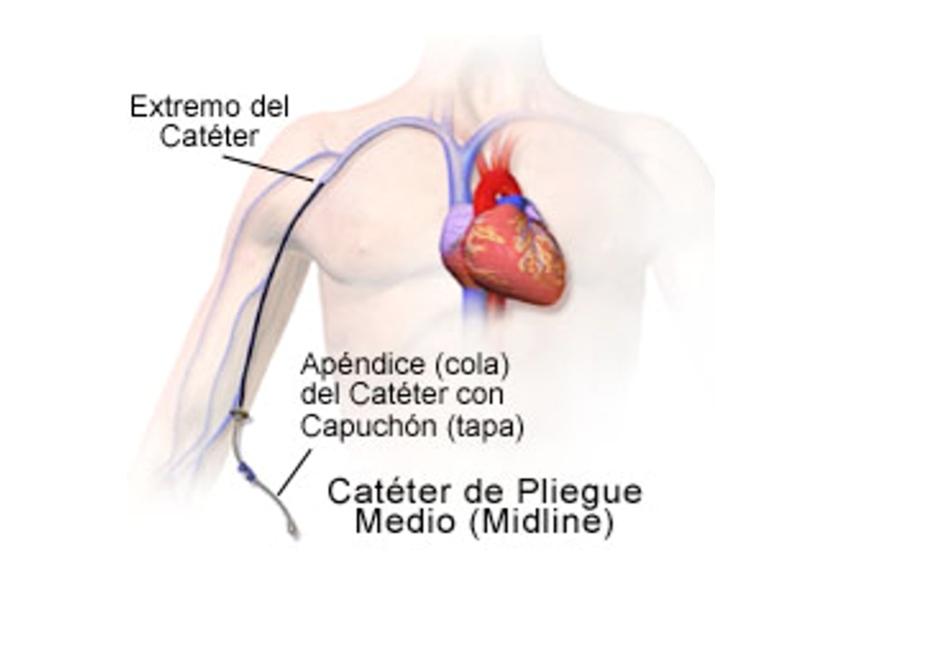 Catéter venoso periférico de línea media (CVPM)