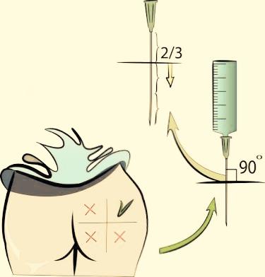 Inserte la aguja formando un ángulo de 90º