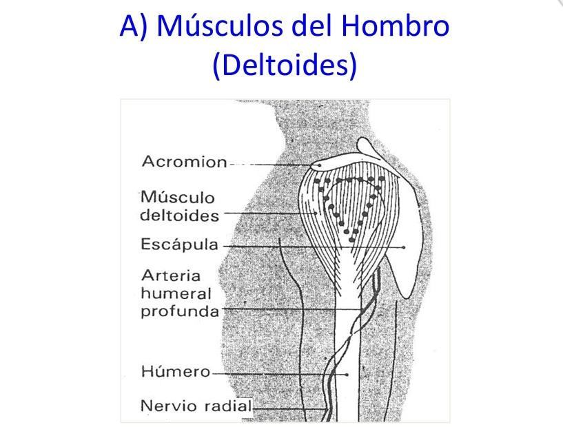 Intramuscular zona deltoidea