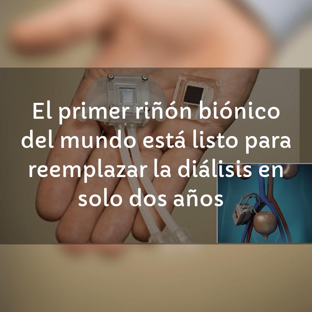 El primer riñón biónico del mundo está listo para reemplazar la diálisis en solo dos años