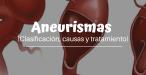 Aneurismas (clasificación, Causas y tratamiento)