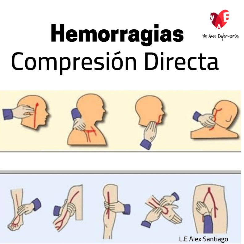 hemorragias Compresión directa