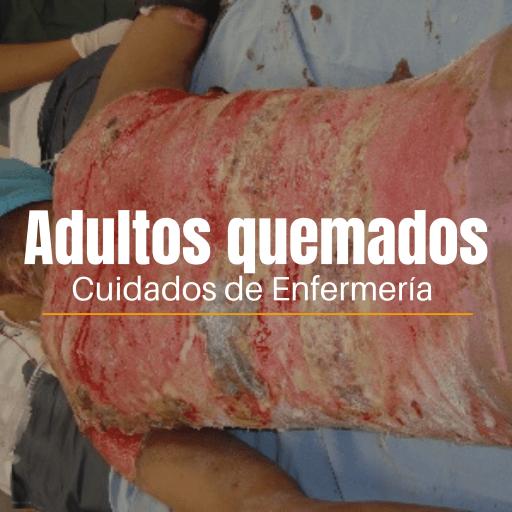 ADULTOS QUEMADOS CUIDADOS DE ENFERMERÍA