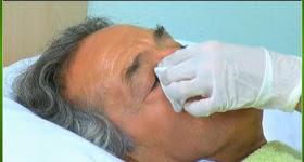 Higiene de Ojos en Pacientes Hospitalizados