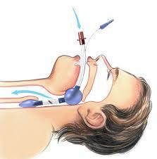 Intubación endotraqueal Mantenimiento