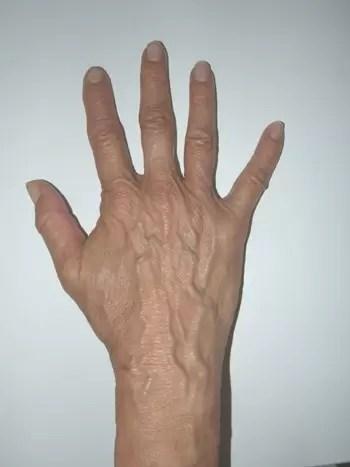 2601 - טיפול אנטי אייג'ינג, לכפות הידיים - יש דבר כזה!