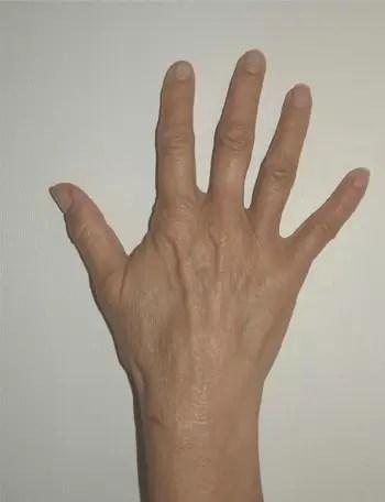 2602 - טיפול אנטי אייג'ינג, לכפות הידיים - יש דבר כזה!