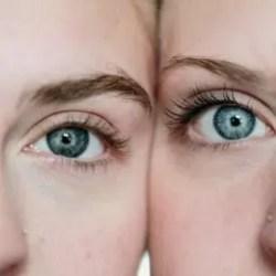 3099 - מה אומרות עינייך? כל מה שאת צריכה לדעת על מילוי שקעים מתחת לעיניים.