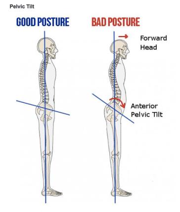 Good posture_bad posture