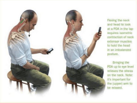 How looking at a smartphone affects body posture