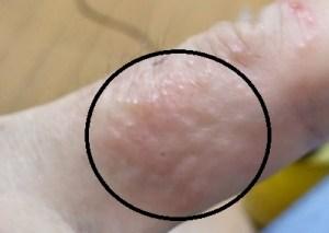 「ハゼノキかぶれ」の症状・経緯・解決報告。水泡・かゆみ・目の腫れ