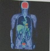 PET検査画像
