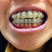 (20)シドニーで差し歯の歯列矯正(2014年10月15日)