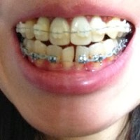 (15)シドニーで差し歯の歯列矯正:横顔の写真あり(2014年2月16日)