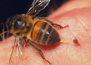 bị ong đốt