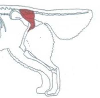 displasia dell'anca