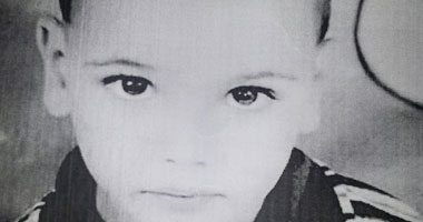 الطفل المصاب محمود