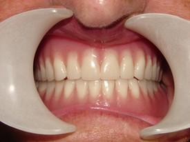 Dentures - AFTER