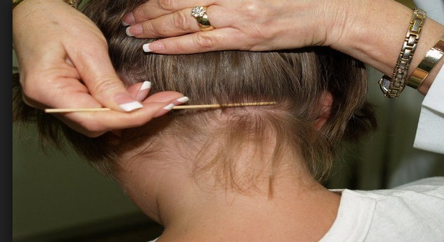 Eucalyptus Oil For Head Lice