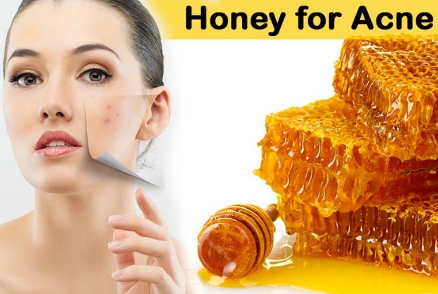 Honey Treats Acne & Acne Scars