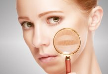 tips to remove skin pigmentation