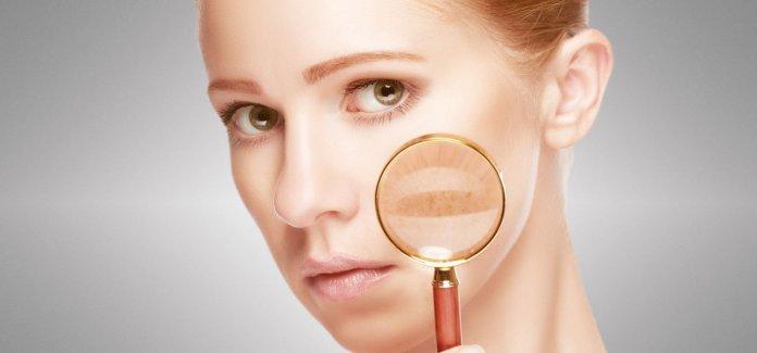 tips to remove skin pigmentation