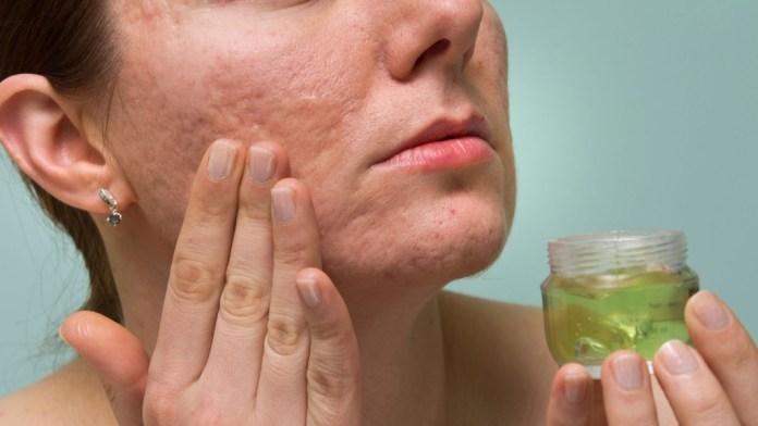 vitamin e removes scars