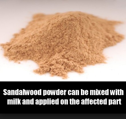 Sandalwood To Get Rid Of Pigmentation