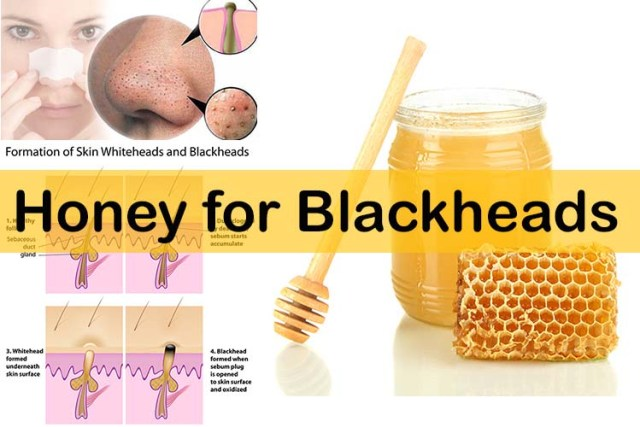 how to prevent blackheads on nose