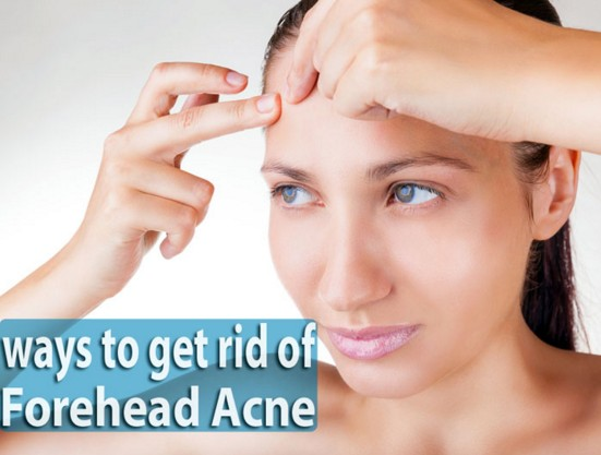 to cure forehead pimples