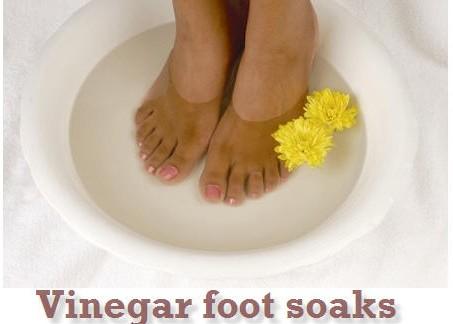 vinegar foe feet