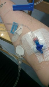 Infliximab arm: note the filter!