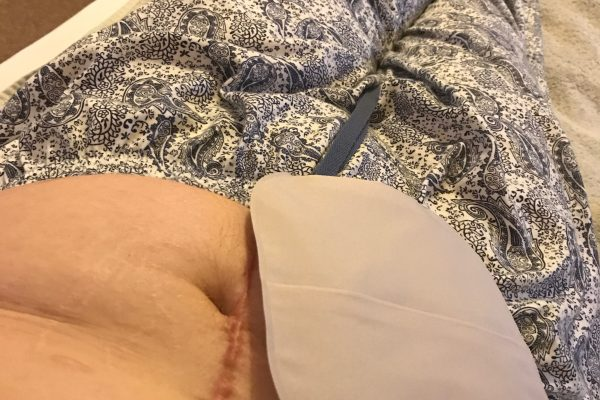 Why I'm Keeping my Stoma Bag | World Ostomy Day 2017