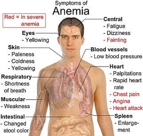 Ayurvedic-Herbal medicine for ANAEMIA