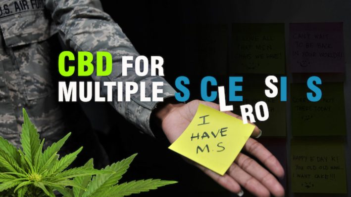 cbd oil for multiple sclerosis