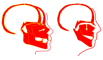 Correct Facial Growth Tongue On Roof Of Mouth