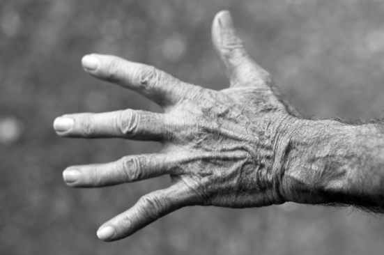 skin wrinkles on the hand