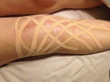 knee-taped