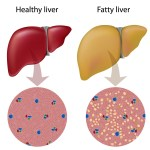 8 Fatty Liver Foods To Avoid